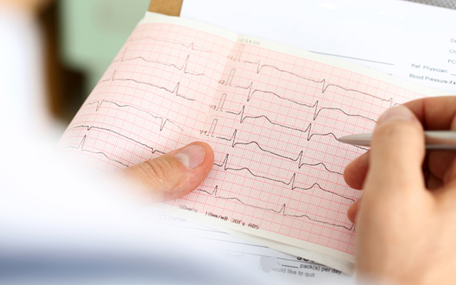Электрокардиограмма (ЭКГ) сердца на дому в Харькове
