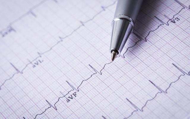 Кардиограмма сердца на дому